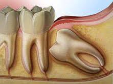 extraction dentaire strasbourg 67000 dentiste dr henri guegan dentiste la roberstau. Black Bedroom Furniture Sets. Home Design Ideas
